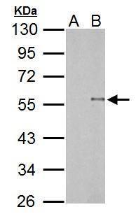TDG Antibody (PA5-34948) in Western Blot