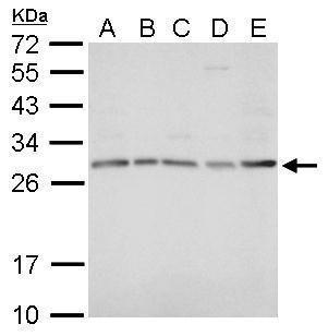 HOXD8 Antibody (PA5-34951) in Western Blot
