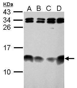 ENY2 Antibody (PA5-34959)