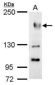 PREX1 Antibody (PA5-34960) in Western Blot