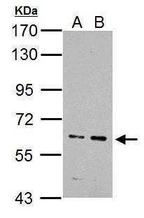 IKZF4 Antibody (PA5-34963) in Western Blot
