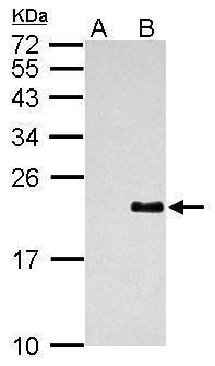 Dengue Virus Type 2 PrM Antibody (PA5-34966) in Western Blot