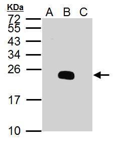 Dengue Virus Type 2 PrM Antibody (PA5-34967) in Western Blot