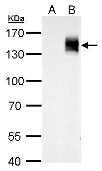mCherry Antibody (PA5-34974) in Western Blot