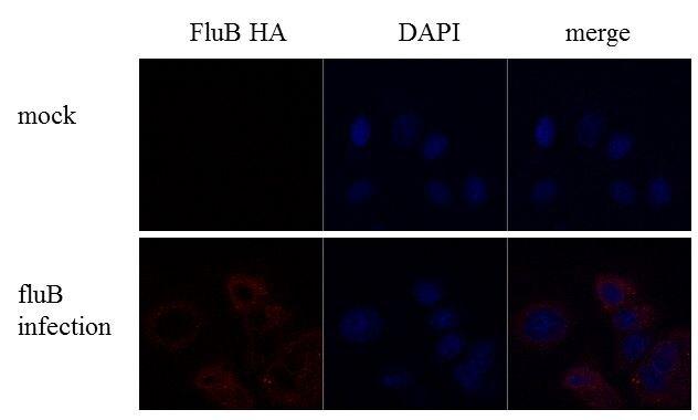 Influenza B HA Antibody (PA5-34975) in Immunofluorescence