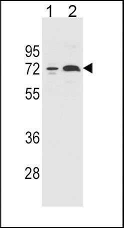 CYP2B6 Antibody (PA5-35032) in Western Blot