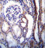 V-ATPase B1 Antibody (PA5-35052) in Immunohistochemistry (Paraffin)