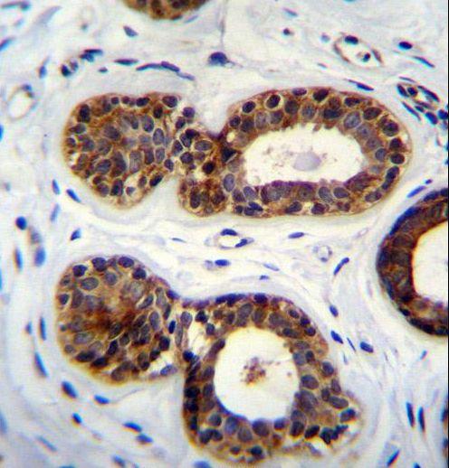 QTRTD1 Antibody (PA5-35066) in Immunohistochemistry (Paraffin)