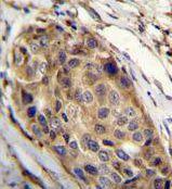 SSH3 Antibody (PA5-35067) in Immunohistochemistry (Paraffin)