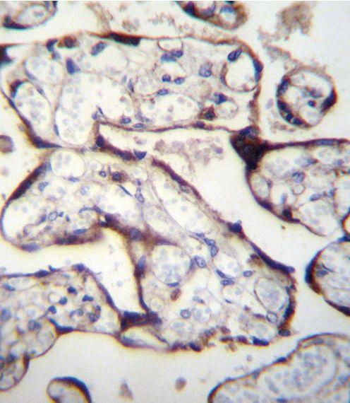 TGFBR2 Antibody (PA5-35076) in Immunohistochemistry (Paraffin)