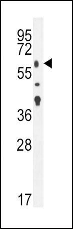 TGFBR2 Antibody (PA5-35076) in Western Blot