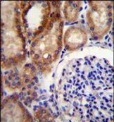CLCN7 Antibody (PA5-35078) in Immunohistochemistry (Paraffin)