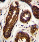 Maspin Antibody (PA5-35104) in Immunohistochemistry (Paraffin)