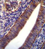 COL21A1 Antibody (PA5-35105) in Immunohistochemistry (Paraffin)