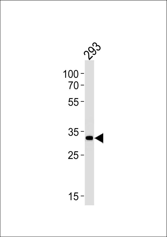 STUB1 Antibody (PA5-35110) in Western Blot