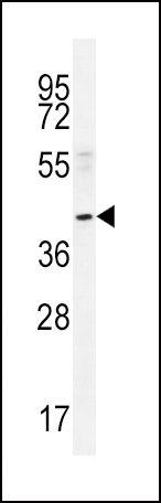 NEU2 Antibody (PA5-35114) in Western Blot