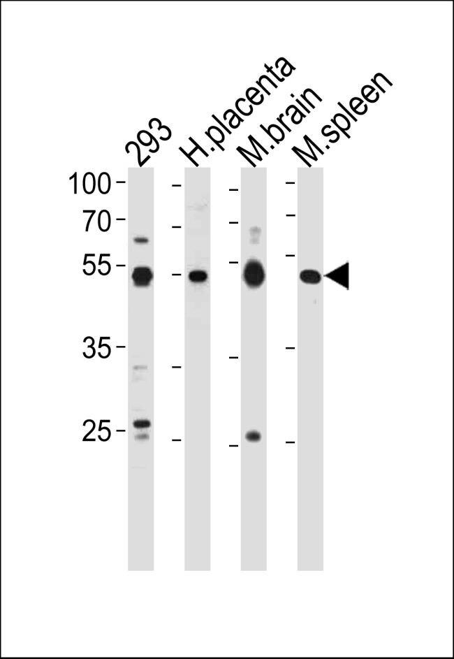 HINFP Antibody (PA5-35123)