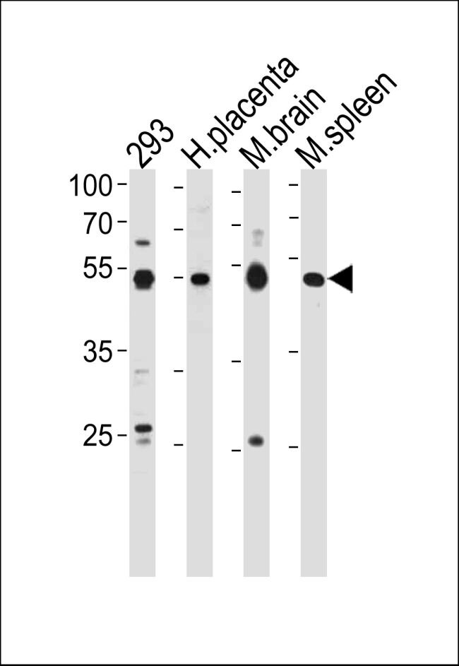 HINFP Antibody (PA5-35123) in Western Blot