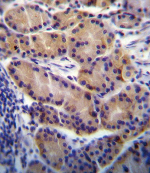 CYP2S1 Antibody (PA5-35124) in Immunohistochemistry (Paraffin)