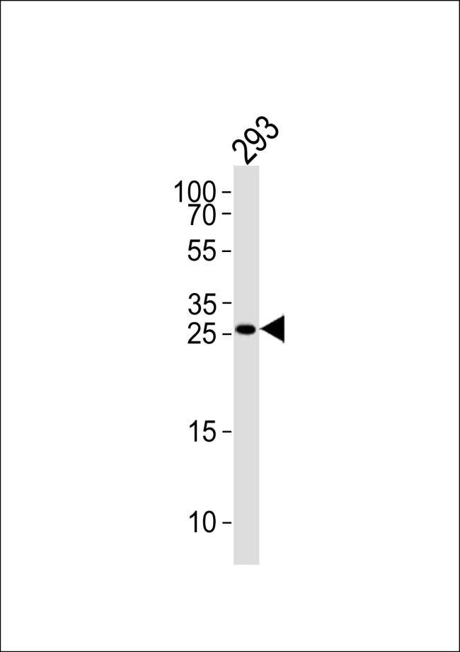 TGIF2 Antibody (PA5-35157) in Western Blot