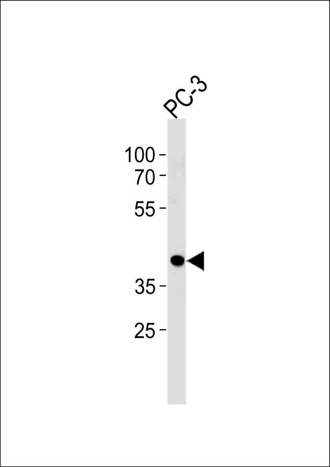 CREB3L4 Antibody (PA5-35178)