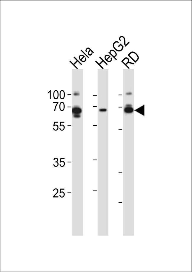 AMPK gamma-3 Antibody (PA5-35182) in Western Blot