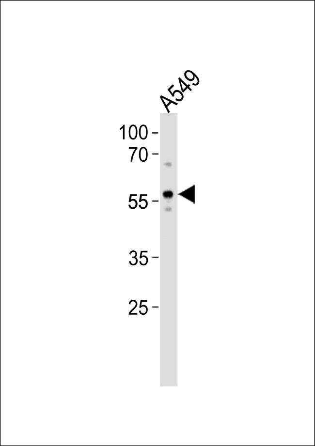 ZKSCAN4 Antibody (PA5-35208) in Western Blot