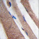 PI3KC3 Antibody (PA5-35215) in Immunohistochemistry (Paraffin)