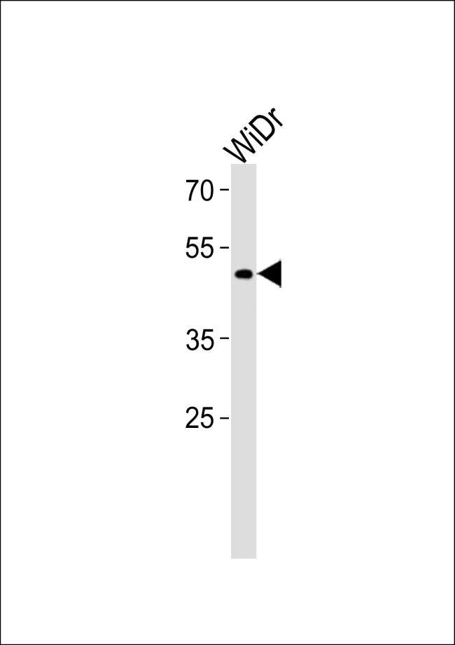 TFDP3 Antibody (PA5-35216) in Western Blot
