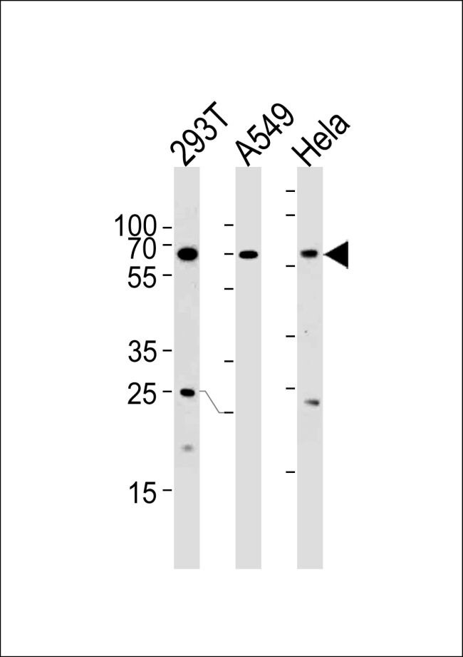 HSF2 Antibody (PA5-35220) in Western Blot