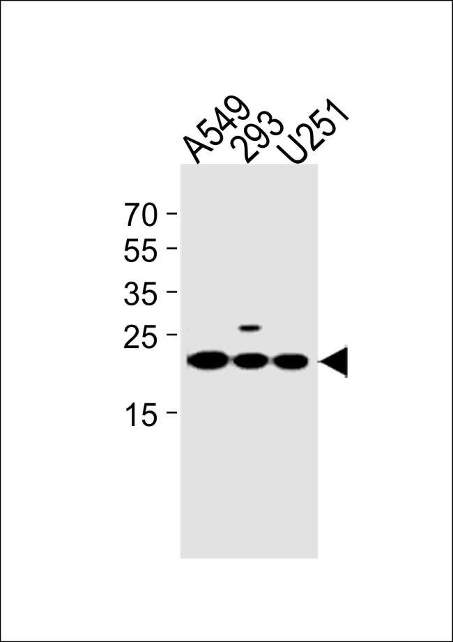 TMEM199 Antibody (PA5-35242)