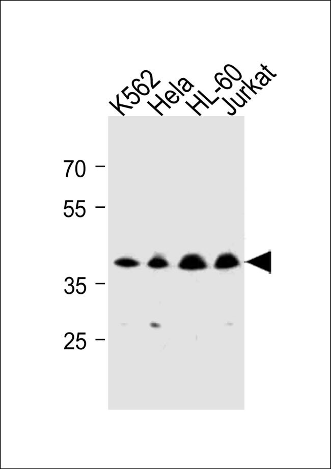 MECR Antibody (PA5-35243) in Western Blot