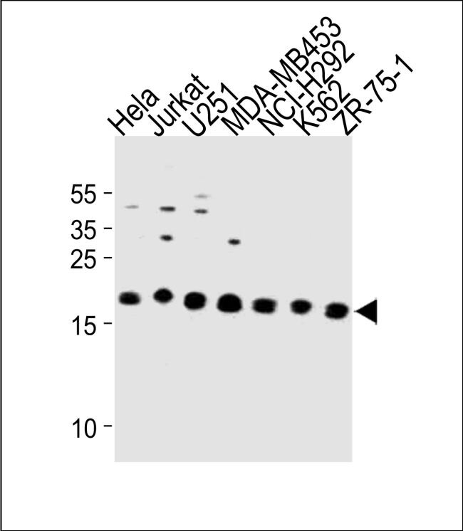 ICT1 Antibody (PA5-35244)