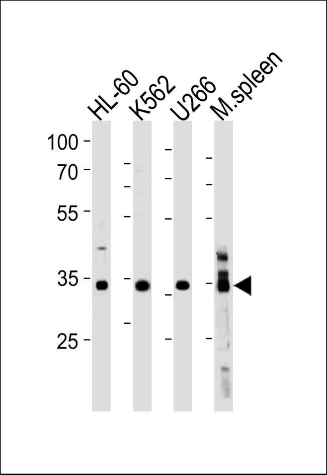 GFI1B Antibody (PA5-35249) in Western Blot