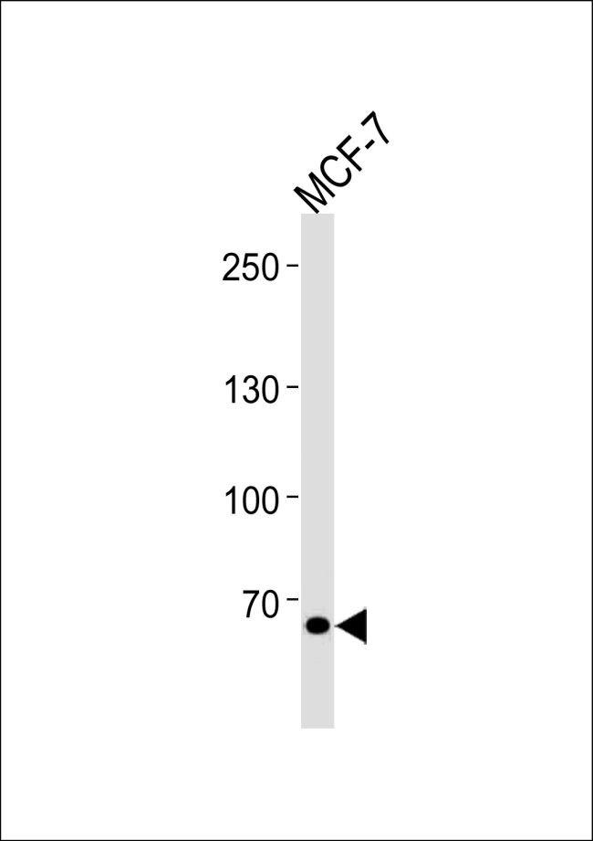 TSPYL2 Antibody (PA5-35264)