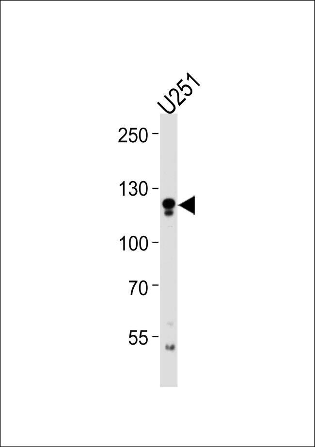 ECE2 Antibody (PA5-35266)