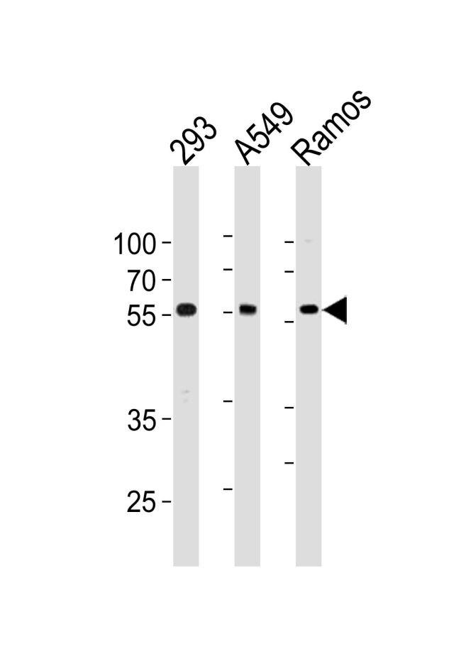 TRIM6 Antibody (PA5-35270) in Western Blot