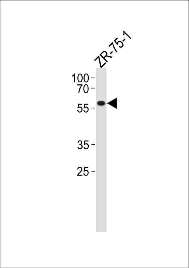 PPP2R2A Antibody (PA5-35273)