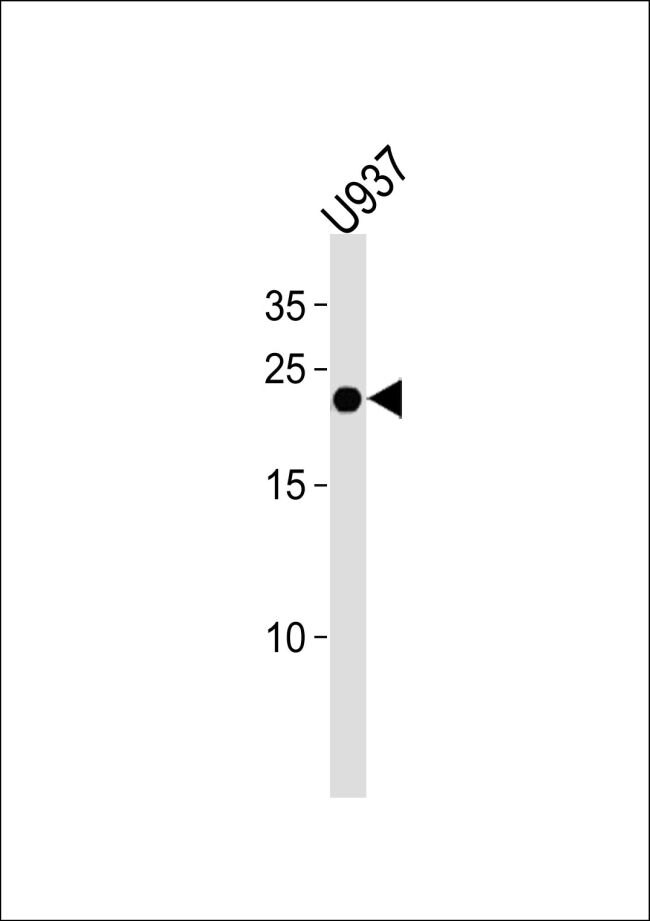 Interferon alpha-4 Antibody (PA5-35276) in Western Blot