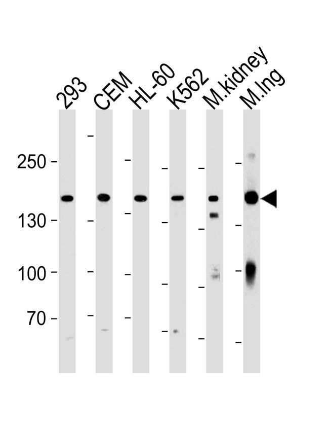 PKP4 Antibody (PA5-35286)
