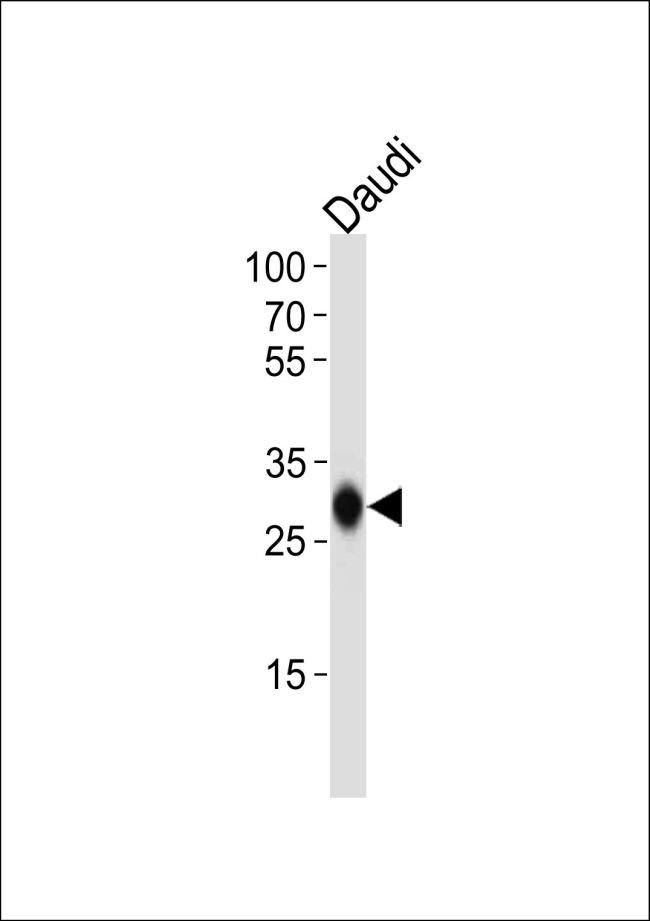 HLA-DQB1 Antibody (PA5-35290)