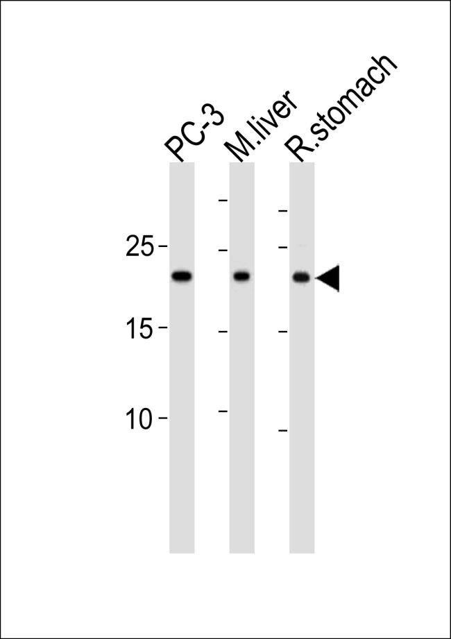 PSMB2 Antibody (PA5-35292)