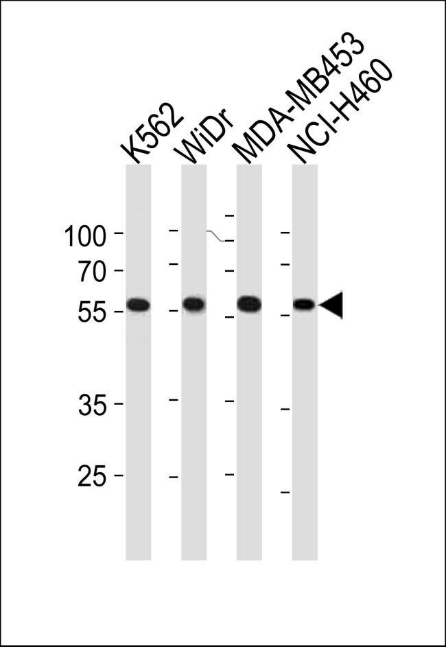 NPIPL2 Antibody (PA5-35294)