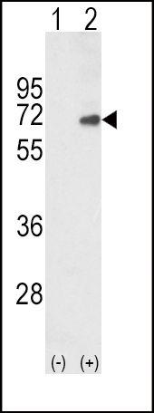 SMAD4 Antibody (PA5-35330) in Western Blot