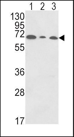 PIGR Antibody (PA5-35340) in Western Blot
