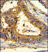 SCAP Antibody (PA5-35341) in Immunohistochemistry (Paraffin)