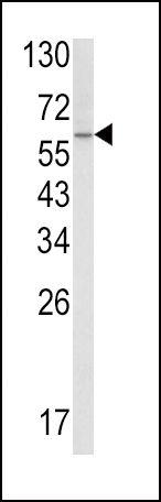SCP2 Antibody (PA5-35350) in Western Blot