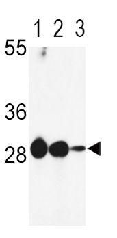 DCI Antibody (PA5-35362) in Western Blot