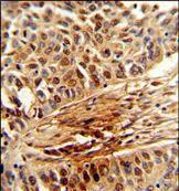 PIN1 Antibody (PA5-35372) in Immunohistochemistry (Paraffin)