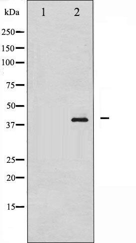 Phospho-NPM1 / Nucleophosmin pThr199 Antibody (PA5-35450)